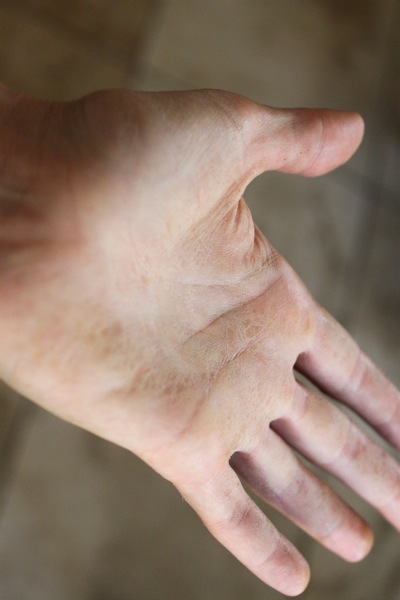 Potato hand