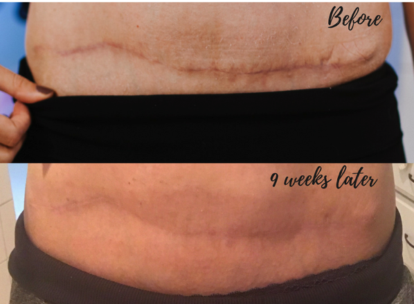 Embrace Active Scar Defense before and after