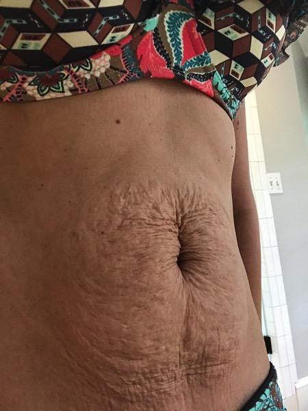 Wrinkly skin postpartum